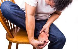 Những điều cần biết về bệnh gút