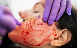 Lăn kim trẻ hóa da bằng máu: Bác sĩ Da liễu cảnh báo đầy rẫy nguy cơ lây bệnh
