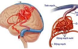 Dị dạng mạch não: Bệnh nguy hiểm, dễ nhầm lẫn