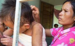 Bác sĩ năn nỉ xin cứu bé 9 tuổi, gia đình quyết từ chối