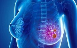 """""""Tưởng đâu chỉ là 1 cơn đau bình thường, hóa ra tôi đã mắc phải ung thư vú giai đoạn 4"""""""