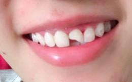 Cô dâu kể chuyện trước ngày cưới bị tai nạn bầm dập, ai cũng chỉ buồn cười khi nhìn vào hàm răng
