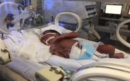 Bà mẹ ung thư giai đoạn cuối vẫn sinh con: Nhìn thấy ảnh con không kìm được nước mắt