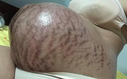 """Hình ảnh chiếc bụng của mẹ trước và sau sinh """"gây bão"""" nhất ngày 1/6: Để có những đứa con chào đời, cái giá của mẹ là đây"""
