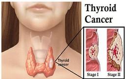 16 tuổi mắc ung thư tuyến giáp: Bệnh này có đáng sợ?