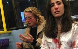 Hai cô gái đồng tính bị hành hung dã man chỉ vì không chịu hôn nhau cho những thanh niên trên xe buýt xem