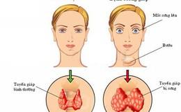 Bệnh cường giáp và các biến chứng tim mạch