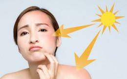 Một số bệnh da hay gặp trong mùa hè