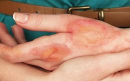 Từ hình ảnh dùng kem đánh răng chữa bỏng khiến bàn tay sưng phồng nghiêm trọng, bác sĩ khuyến cáo việc nên làm khi bị bỏng