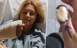 Tâm sự của cô gái bị ung thư, phải cắt bỏ ngón tay cái vì thói quen xấu mà rất nhiều người mắc phải