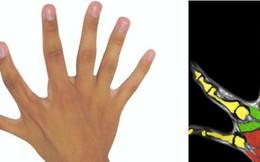 """Dành cho những người mắc chứng """"thừa ngón"""": Liệu bàn tay nhiều hơn 5 ngón có hoạt động tốt hơn bình thường?"""