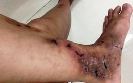 Hoảng sợ bàn chân thủng lỗ chỗ vì căn bệnh tự dị ứng nguy hiểm