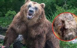 Trông như xác ướp sau khi được cứu từ hang gấu, người đàn ông kể lại nguyên nhân khiến ai cũng sợ hãi