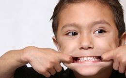 Bé hay chảy máu chân răng: Dấu hiệu bệnh nguy hiểm?