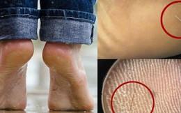 Nhập viện vì gót chân quá đau đớn, bệnh nhân không ngờ thủ phạm lại là sợi tóc mỏng manh dài 1 cm