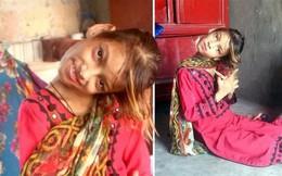 Bị té ngã hồi 8 tuổi, bé gái mắc hội chứng kỳ lạ ở cổ làm đầu nghiêng 90 độ, chờ đợi 2 năm vẫn chưa được phẫu thuật