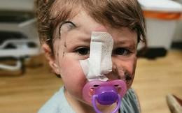 Tham gia sự kiện, bé gái 2 tuổi bị chó cắn suýt mù một bên mắt