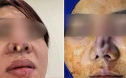 Góc kinh dị: Bà mẹ trẻ đi nâng mũi, nhưng bị lòi cả sụn ra ngoài khiến hội chị em hoang mang sợ hãi