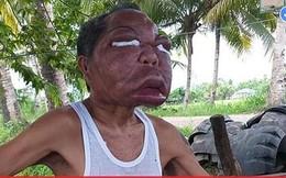 Mắc bệnh lạ, người đàn ông mang bộ mặt biến dạng