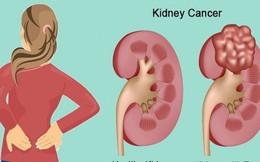 Đau thắt lưng âm ỉ, có thể bạn đã mắc ung thư thận