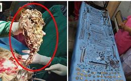 Bệnh nhân nhập viện trong tình trạng nguy kịch, bác sĩ sửng sốt khi phát hiện sự thật có 1-0-2 trong ổ bụng của người phụ nữ
