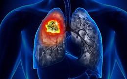 Hút thuốc từ năm 15 tuổi, đã bỏ thuốc 20 năm quý ông 57 tuổi ung thư phổi