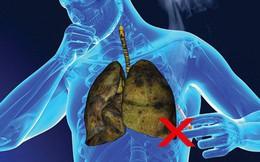 Cảnh báo: Người hút đến 2 bao thuốc mỗi ngày, hoặc liên tục tiếp xúc với khói thuốc phải xét nghiệm ung thư phổi ngay trước khi quá muộn