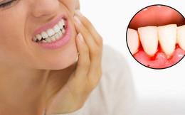 Cảnh báo khi bạn bị chảy máu chân răng