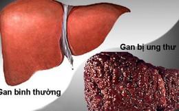 Căn bệnh ung thư nào có tỷ lệ mắc mới lớn nhất hiện nay tại Việt Nam?