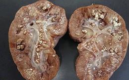 Bác sĩ BV Việt Đức chỉ ra những thói quen cực xấu khiến cơ thể tạo sỏi