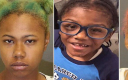 Con trai 4 tuổi bị bỏng nặng mà không chạy chữa, người mẹ còn có hành động tàn nhẫn này