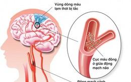 3 bệnh lý mạch máu nguy hiểm không thể bỏ sót