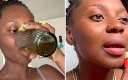 Cô gái uống và thoa nước tiểu lên mặt để dưỡng da, kết quả thu được thật bất ngờ so với dự đoán