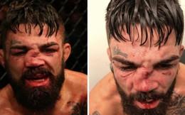 Mũi của võ sĩ điển trai biến dạng đến không thể tin nổi sau khi phải nhận một trong những chấn thương kinh hoàng nhất lịch sử