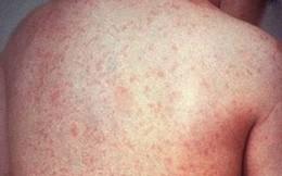 Bài thuốc phòng chống bệnh sốt phát ban