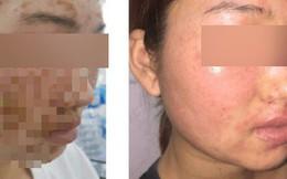 Da mặt cô gái sùi như vỏ cây sau khi dùng bột mua trên mạng để rửa mặt