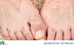 7 lời khuyên cho người mắc bệnh tiểu đường khi bị thương ở chân