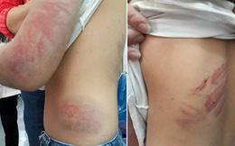 Vợ bỏ đi 4 năm, chồng nhiều lần hành hạ dã man con ruột 6 tuổi
