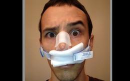 Chàng thanh niên thở bằng một lỗ mũi suốt từ bé đến lớn mà không hề hay biết, hút thuốc mới nhận ra