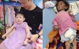 Hình ảnh em bé Lào Cai bụ bẫm đáng yêu trong bộ váy tím khi được bố nuôi bế khiến nhiều người chú ý