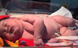 """Bà mẹ phi thường: Sinh con nặng 6,8 kg bằng phương pháp sinh thường khiến các mẹ từng chửa đẻ không ngừng """"ố, á"""""""