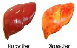 Bệnh nhân xơ gan nên ăn và nên tránh thực phẩm gì?