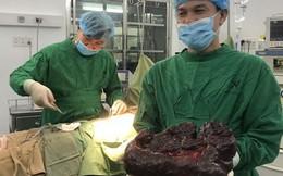 Hiếm gặp: Khối u đa nang lách 'khổng lồ' nặng 5 kg ở phụ nữ 29 tuổi