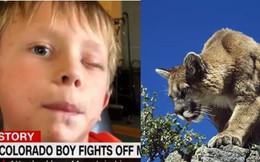 Sống sót thần kỳ sau khi bị báo sư tử tấn công, cậu bé 8 tuổi chia sẻ cách tự vệ khiến ai nấy đều bất ngờ
