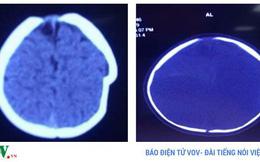Ngã xe tập đi, bé 8 tháng tuổi ở Phú Thọ bị lún sọ não