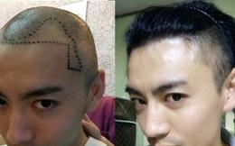 """""""Đại dịch"""" hói đầu tấn công đàn ông Trung Quốc, dịch vụ chăm sóc và cấy tóc mọc lên như nấm sau mưa"""