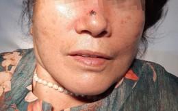 Nốt ruồi 2 năm trên mũi lại 'hóa' ung thư da nguy hiểm