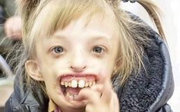 Bé gái khuyết nửa khuôn mặt lần đầu tiên có thể cười