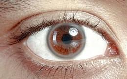 9 dấu hiệu bất thường trên đôi mắt cảnh báo bệnh tật nguy hiểm