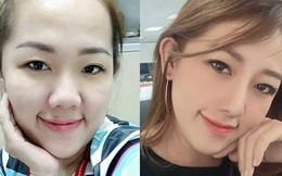 Chi 45 triệu làm mũi, cô nàng khẳng định lại chân lý: 1 chiếc mũi xinh xắn quyết định 80% nét đẹp khuôn mặt!